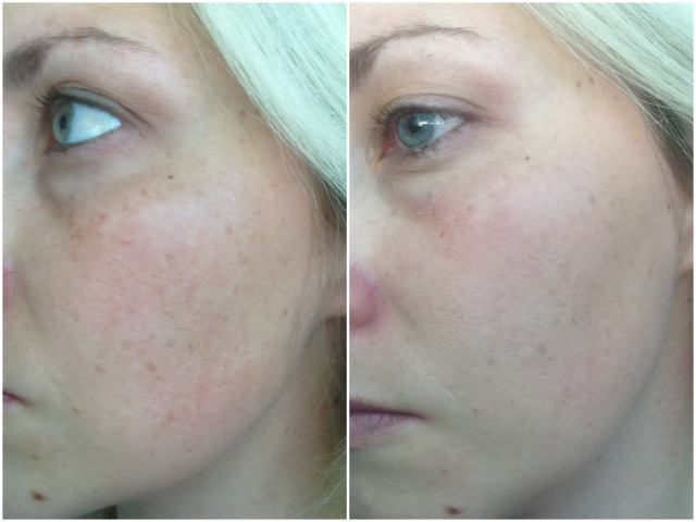 rodan & fields reverse results after 4 weeks | ohlovelyday.com